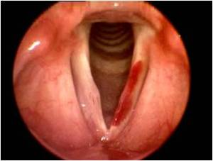 Fig 4 Vocal fold hemorrhage